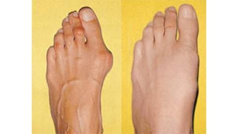 Вальгусная деформация стоп (косточка) - почему появляется и как её лечить.